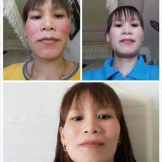Chuyên trị nám tàn nhang của lethimylinh2 tại Đà Nẵng - 891891