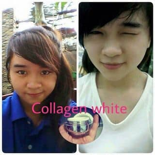 Face collagen whitening kem dưỡng trắng ngừa mụn cao cấp của thuhoang62 tại Đồng Nai - 1454561