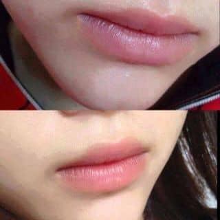 Làm hồng môi của cogaimattroi201090 tại Ninh Bình - 1529894