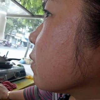 Thay đổi làn da xấu để lấy lại làn da đẹp.  của mimmum12 tại Shop online, Huyện Nghi Xuân, Hà Tĩnh - 3592537
